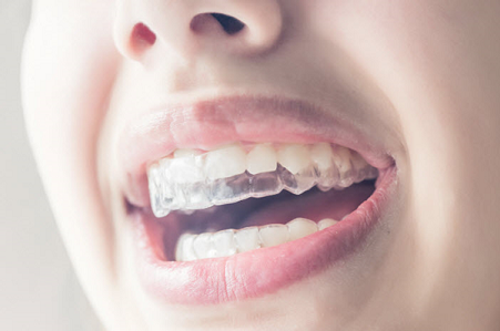 Straighten your Teeth and Smile more with Invisalign
