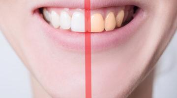 Beyond the Enamel: The Benefits of Teeth Whitening Kits